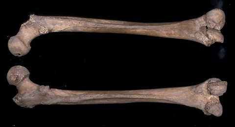 The linea aspera on a femur from the African Burial Ground. (Photograph courtesy of Michael L. Blakey.)