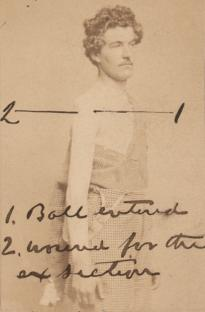 Wounded soldier with diagram of path of the bullet, ca. 1861. (GLC05111.02.1293)